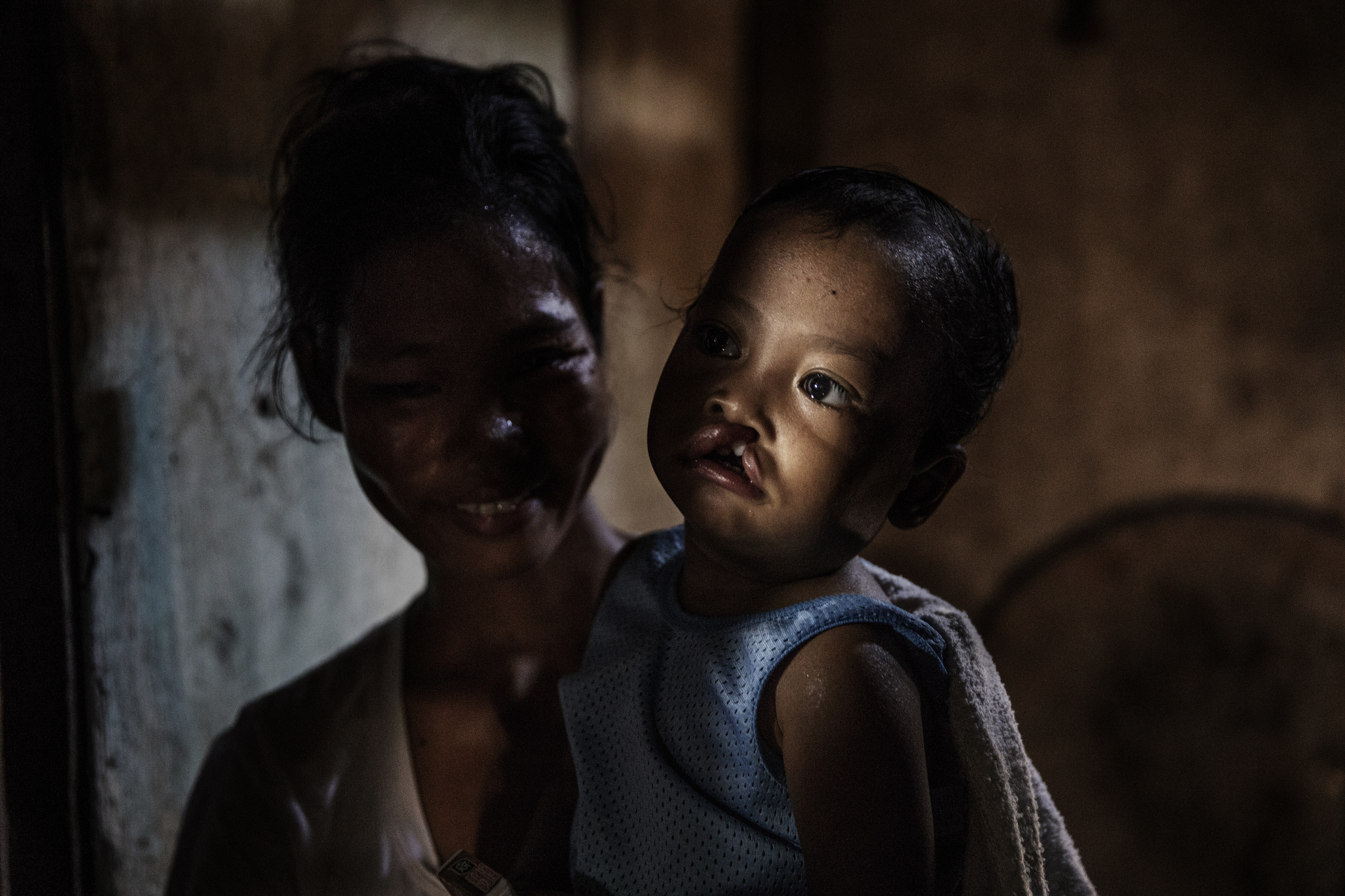 Sydney humanitarian photography, charity, Operation restore hope, cleft lip, cleft palate, Philippines, children, baby, plastic surgery, help, smile, Doctors, surgery, poverty